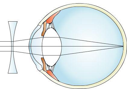 Šošovky pre korekciu krátkozrakosti