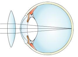 Šošovky pre korekciu ďalekozrakosti